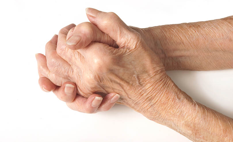 How to Recognize the Signs of Arthritis