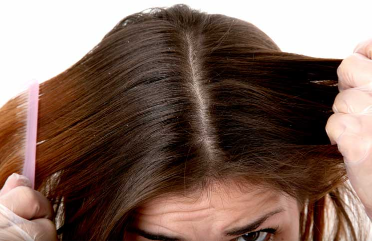 Tips and Tricks to Remove Dandruff Fast