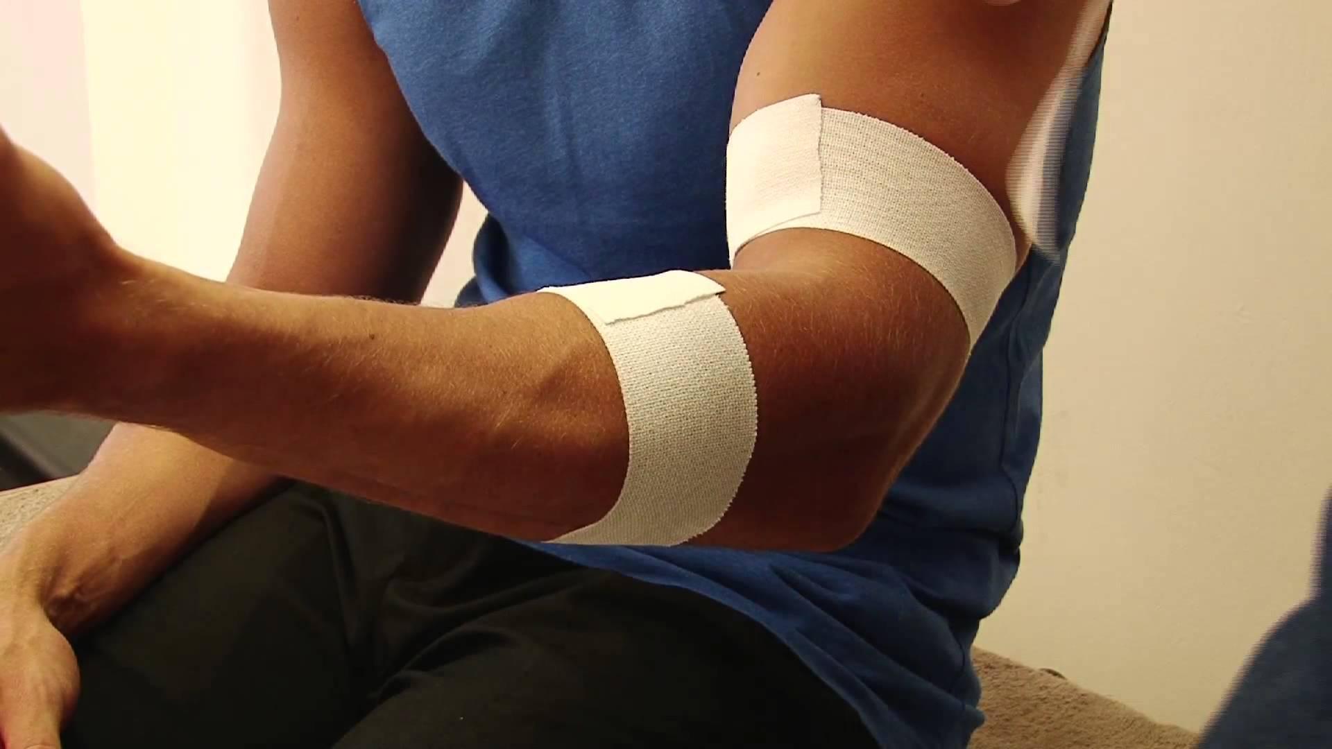 biceps-tendinitis