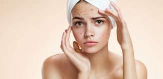 5 Things you should stop doing if you have Acne