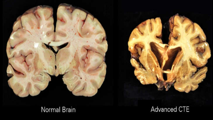 View of Healthy brain vs damaged brain