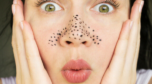 6 Effective Ways to Remove Blackheads